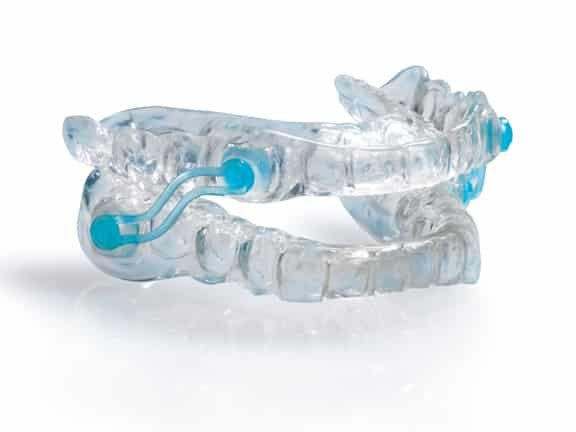 silent nite mouthguard to treat sleep apnea